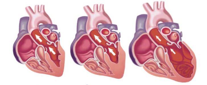¡Descubra 8 señales inesperadas e impactantes de la insuficiencia cardíaca!